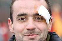 Útočník RSM Hodonín Petr Němeček se na tréninku hlavou srazil se stoperem Šapčkem.