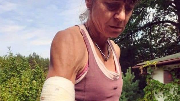 Běžkyni a výzkumnici Alenu Žákovskou na Sportovním ostrově Ludvíka Daňka v Blansku napadl pes.