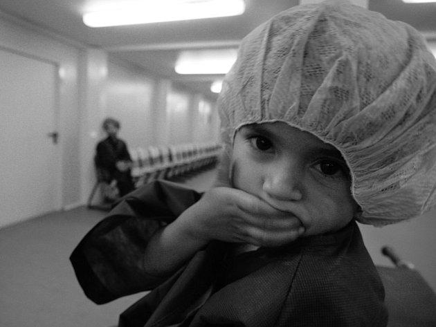 Afghánská holčička před operací