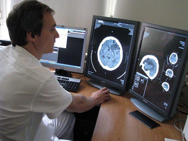 Znojemská nemocnice má nový digitální rentgen