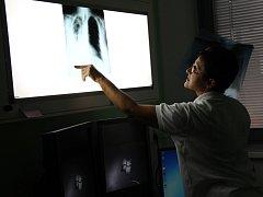 S nádorovým onemocněním plic bojují častěji muži.