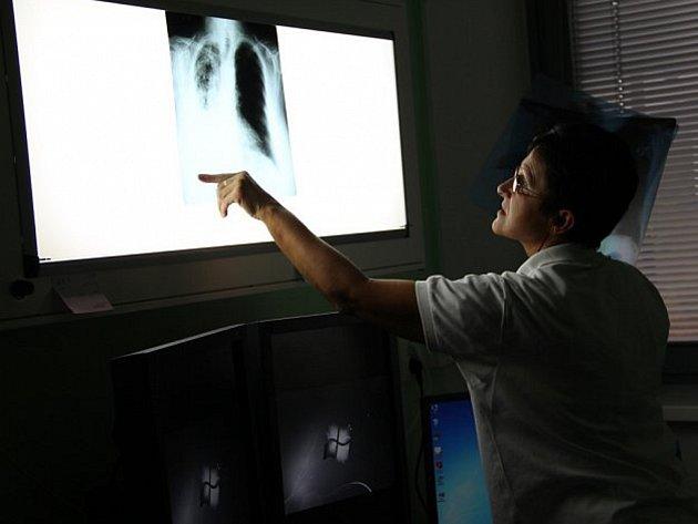 Mezi základní vyšetření při podezření na IPF patří rentgen plic.