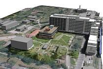 Českolipská nemocnice se chce přiblížit moderním evropským zařízením. Plánuje přístavbu pavilonu intenzivní medicíny.