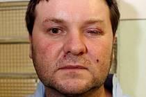 Myslivec trefil místo kachny kolegu do hlavy. Zraněným je sedmatřicetiletý Igor Novák z Holubic .