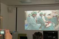 Zákrok lékařů Kardiocentra Nemocnice Podlesí.