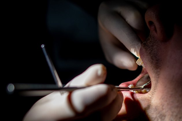 Zubaři - ilustrační foto.
