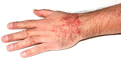 Cerkáriová dermatitida - ilustrační foto.