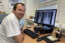 Primář Centra nemocí páteře KHN David Buzek je jediným lékařem na Moravě, který má atestaci ze spondylochirurgie.