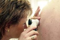 Odborné vyšetření kůže