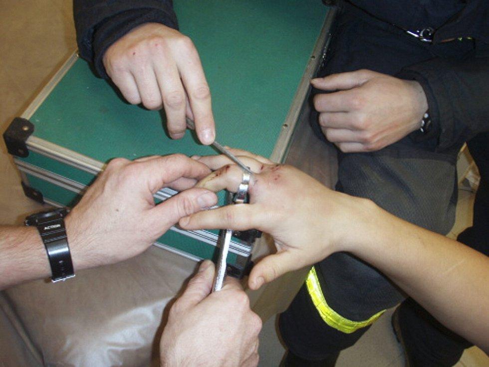 Hasiči prsten opatrně přepilovali pilníčkem