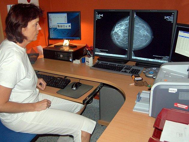 Mamoložka Renáta Kacířová ve svém pracovně před snímky na počítačích.
