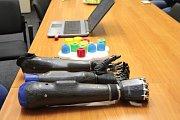 Jan a David si bionické ruce převzali 4. ledna v sídle nadace.