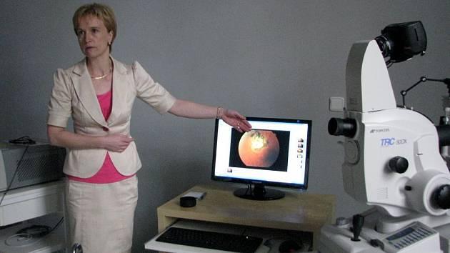 Nová kamera výrazně zlepší vyšetřování sítnice oka.