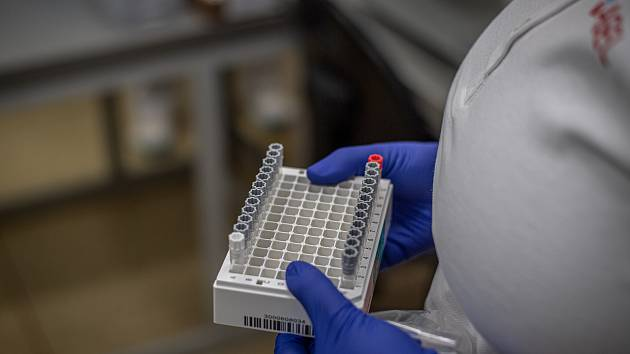 Koronavirus, testování. Ilustrační foto.