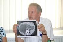 Kvůli nákaze liščí tasemnicí se v pátek konala ve Slezské nemocnici mimořádná tisková konference. Primář infekčního oddělení Slezské nemocnice Petr Kümpel.