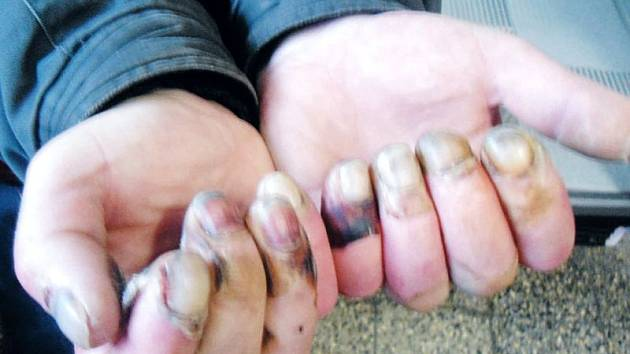 Škaredé omrzliny si bude muž z Osoblažska léčit hodně dlouho, a následky nejspíš už ponese celý život. Prsty na rukou mu nejdřív jen znecitlivěly, do rána přišly puchýře a černofialové fleky.