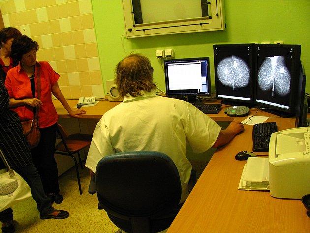 Primář radiodiagnostického oddělení Ivo Šenkyřík ukazuje na snímcích, jak vypadá pozitivní nález. Během slavnostního zahájení provozu mamografického přístroje v Krnově uvedl, že jedním z nejdůležitějších kroků je prevence a včasná návštěva lékaře.