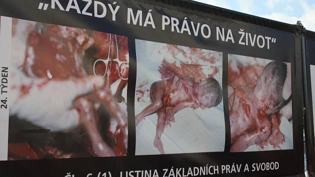 Stop genocity se jmenuje kampaň proti interrupci, která je založena na pouliční výstavě fotografií masakrů, vražd, poprav, mrtvol a potratů. Kdo odporné snímky nechce vidět, musí namísto chodníku použít cyklostezku nebo přejít na opačnou stranu vozovky.