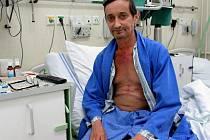 Jan Chalupa krátce po operaci.