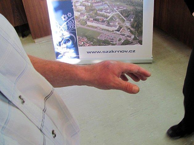 Krnovská nemocnice představila novinářům teraristu a herpetologa Vojtěcha Dzika, kterého uštkla kobra monoklová. Vyláčil se téměř bez následků, jen má oteklou ruku a vní sníženou citlivost.