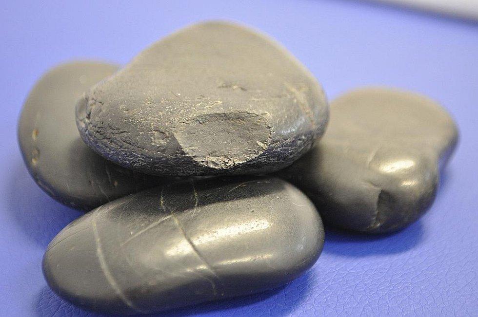 NEJ řešení celulitidy a strií? Kavitace.