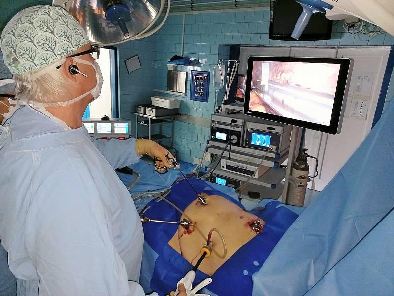 Operace s novou laparoskopickou sestavou.