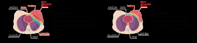 Schéma ozáření prsu (porovnání dopadu záření)