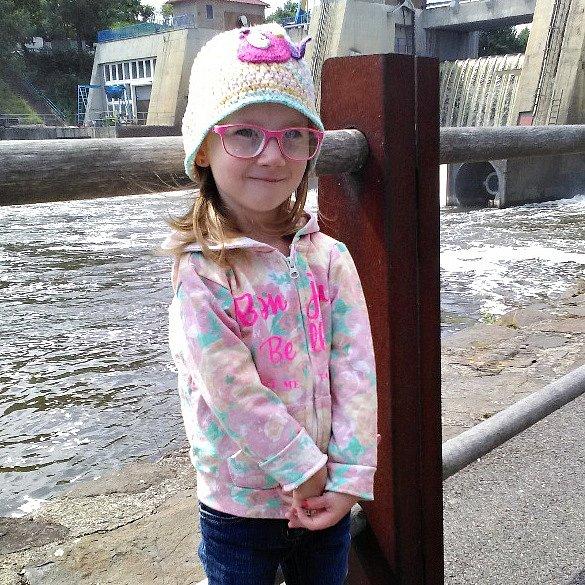 Čtyřleté Magdalence Krebnerové diagnostikovali vývojovou vadou horních končetin.