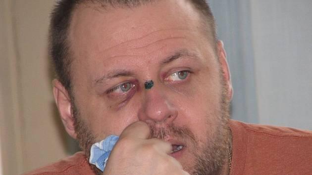 Josef Griml, jeden z napadených chomutovských fanoušků, má zlomený nos.