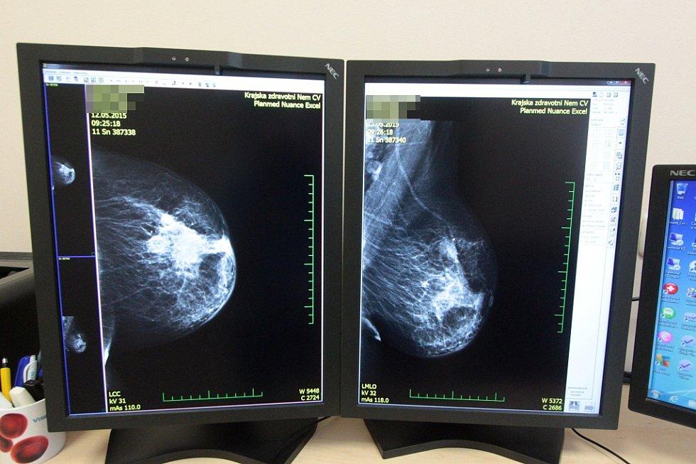 Moderní mamografické centrum v chomutovské nemocnici