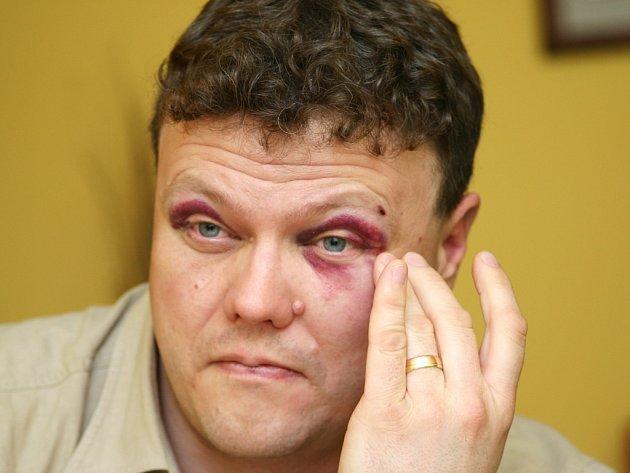 Podlitiny v obličeji, poraněnou ruku a další zranění utrpěl jirkovský městský strážník Petr Kubaczka po útoku rozvášněné skupinky Romů na sídlišti v Jirkově.