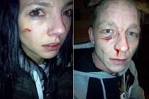 TAKHLE DOPADLI MANŽELÉ Barbora a Jaroslav Dvořákovi, když v jednu hodinu v noci ze silvestra na Nový rok doprovázeli sídlištěm Nové Ervěnice svou příbuznou. Oba museli po napadení vyhledat lékařské ošetření.