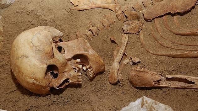 Část ostatků, které byly nalezeny ve středověkém hrobě u Mlékojed